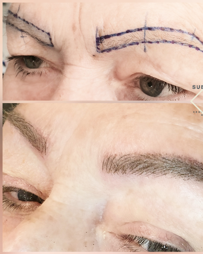 Face mapping and post semi permanent eyebrow treatment