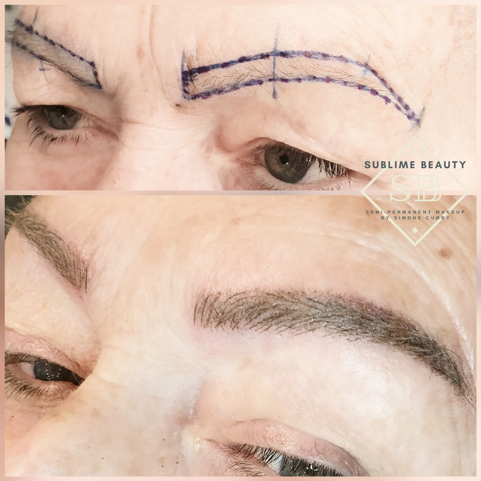 Combination eyebrow treatment, with face mapping and end results.