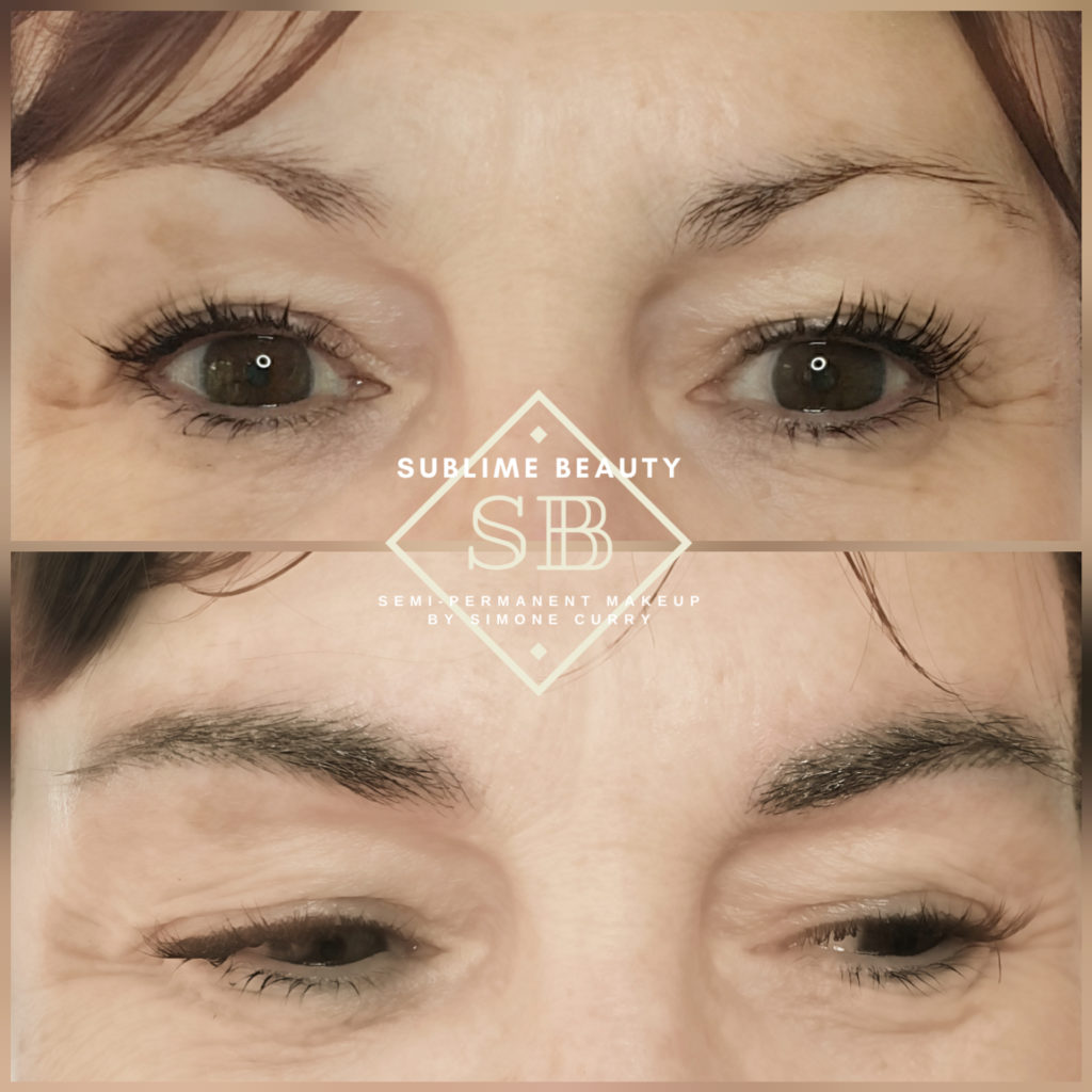Combination brow before and after treatment