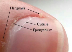 Parts of the fingernail including cuticles and eponychium