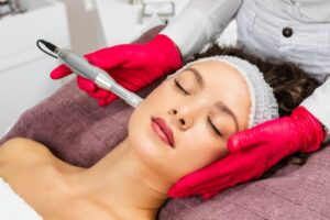 Beautiful woman receiving microneedling rejuvenation treatment. Collagen Induction therapy.