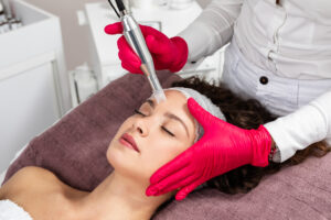 woman receiving microneedling rejuvenation treatment