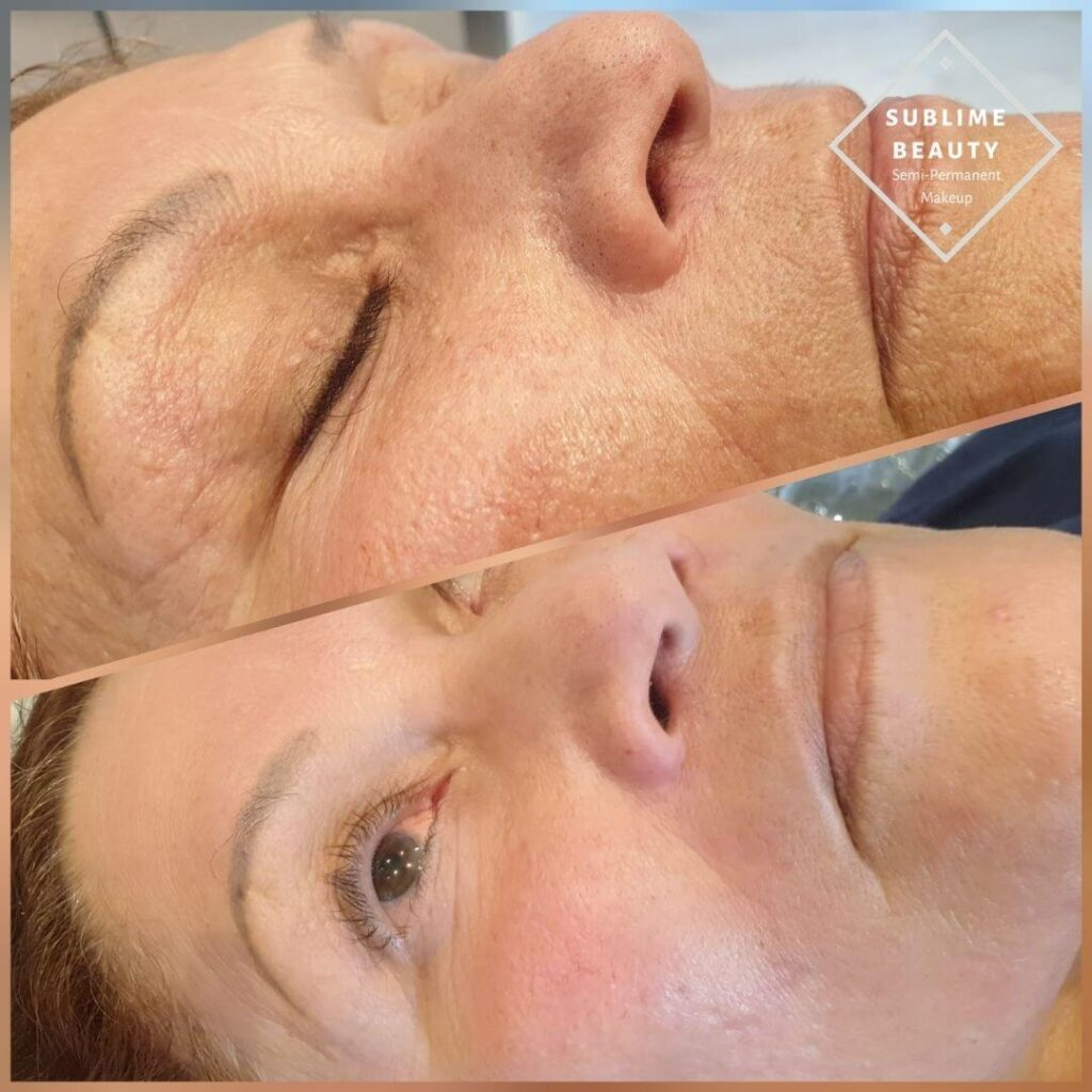 Collagen Induction Therapy, Dermapen, Microneedling before and after